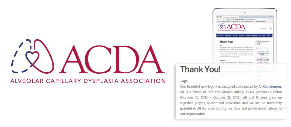 ACDA | Alveolar Capillary Dysplasia Association